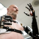 robot-prosthetic